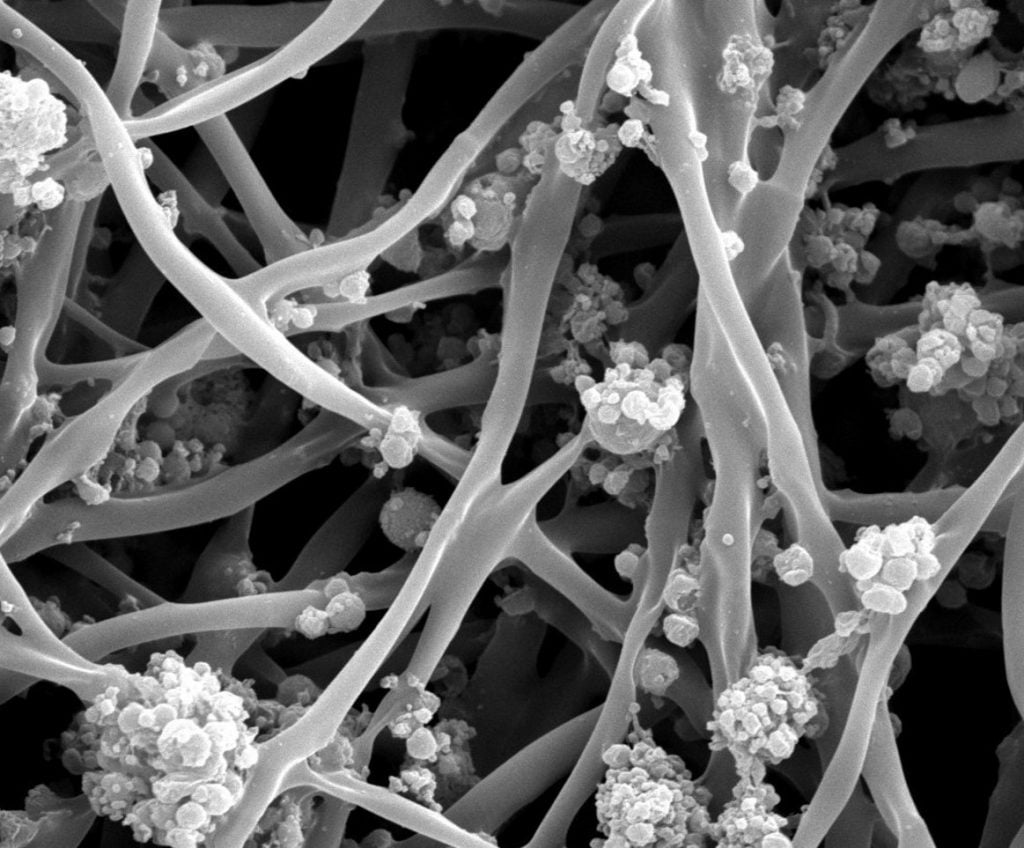 Mimetix Scaffolds The Electrospinning Company